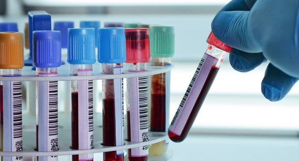 Blood test detects 8 common cancers, study reports