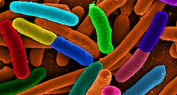 Shapeshifting bacteria in space pose problem for astronauts