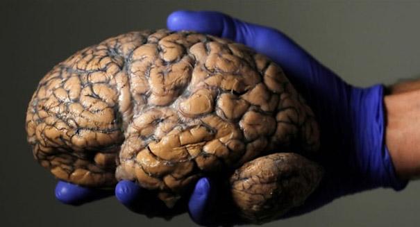 New drug may help treat Huntington's disease
