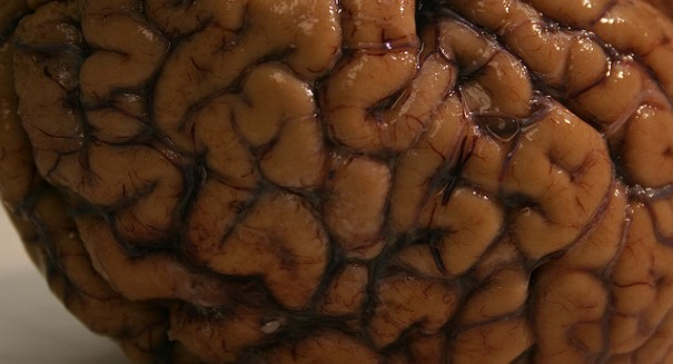 Newly discovered brain enzyme could help ward off brain diseases