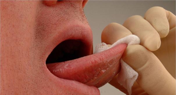 1 in 9 American men have oral HPV