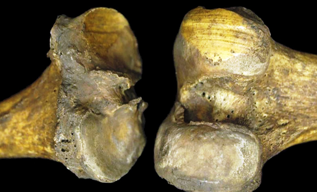 Ancient knee joints shed light on osteoarthritis
